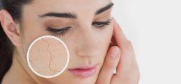 پوست خشک چیست - میترانیتا