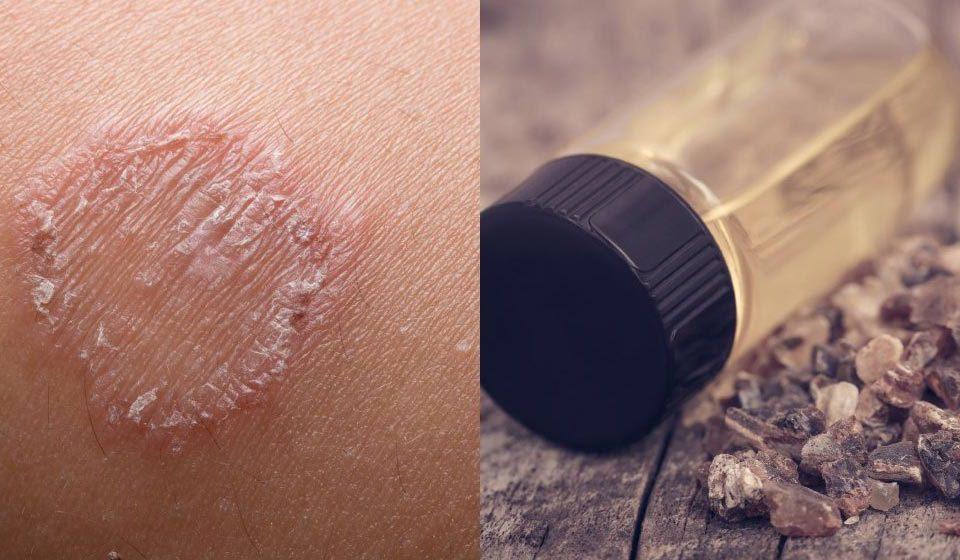 درمان و پیشگیری از کرم حلقوی - میترانیتا