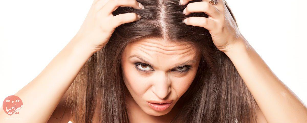 درمان شوره سر - میترانیتا