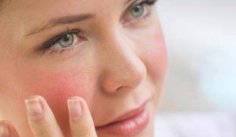 پوست حساس چیست - میترانیتا